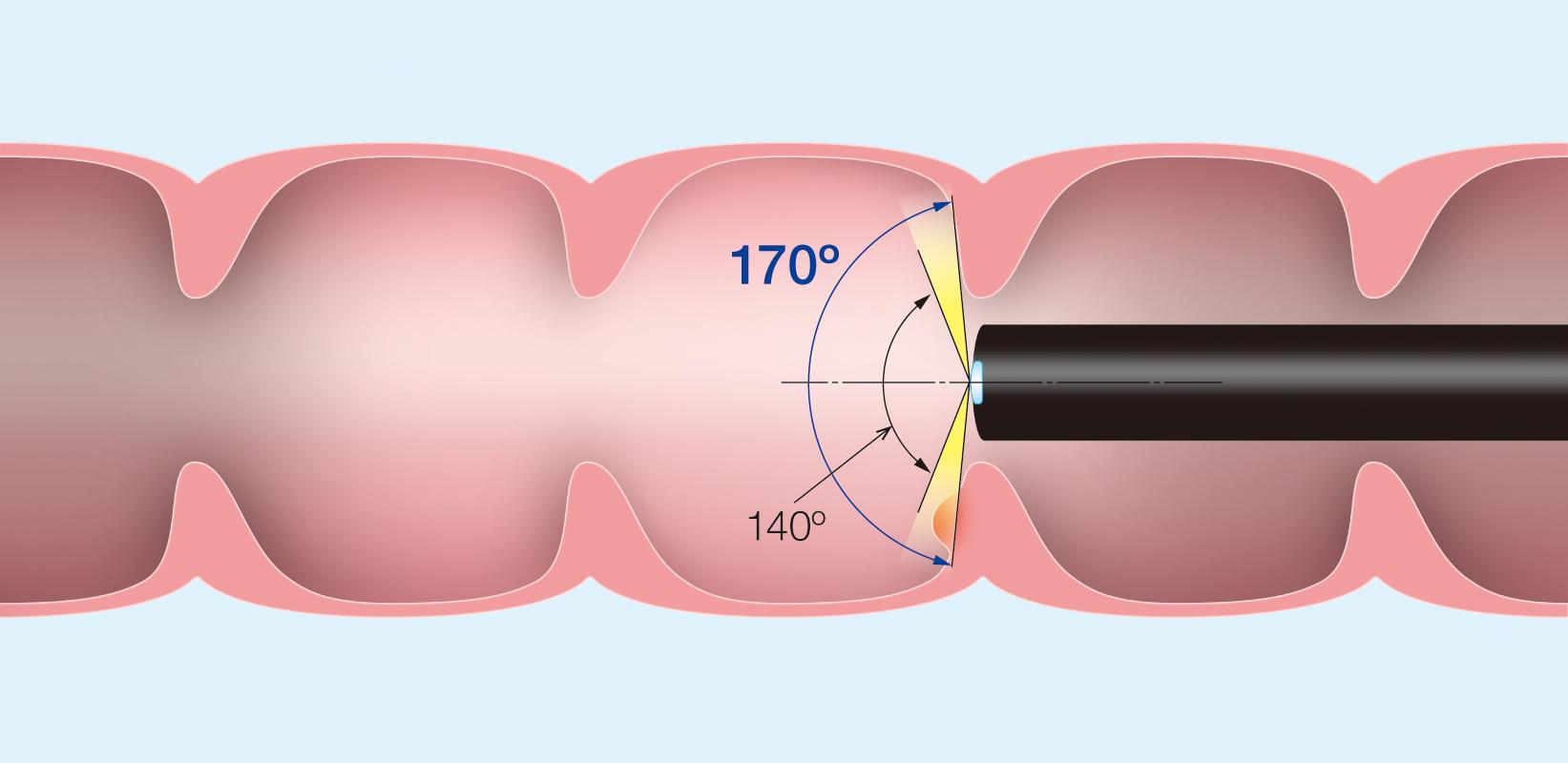 ⑤内視鏡による大腸ポリープの切除