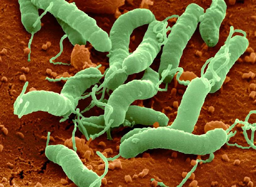 ⑦ピロリ菌の検査と除菌