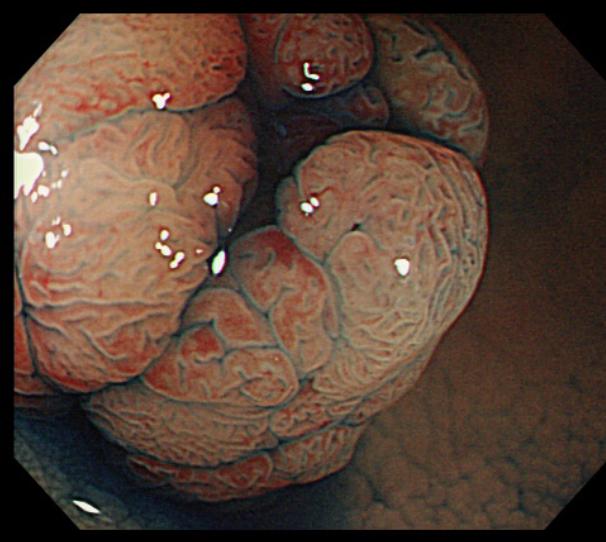 大腸 ポリープ
