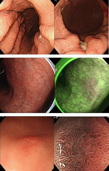 胃がんとピロリ菌の関係